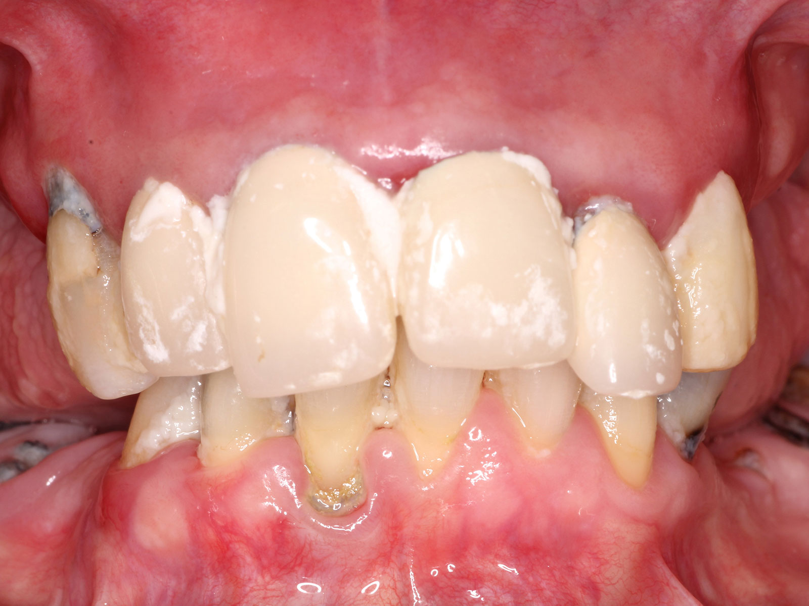 1-1-before-implant-supported-zirconia-hybrid