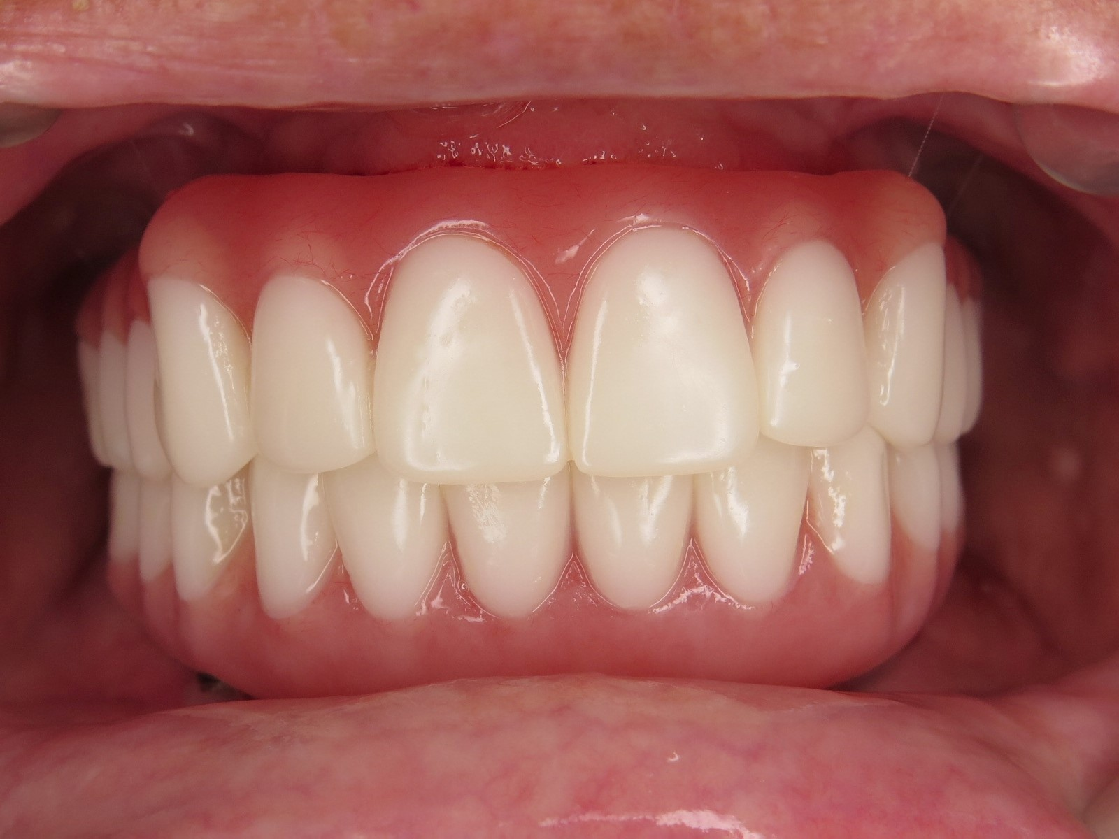 1-2-after-implant-supported-zirconia-hybrid