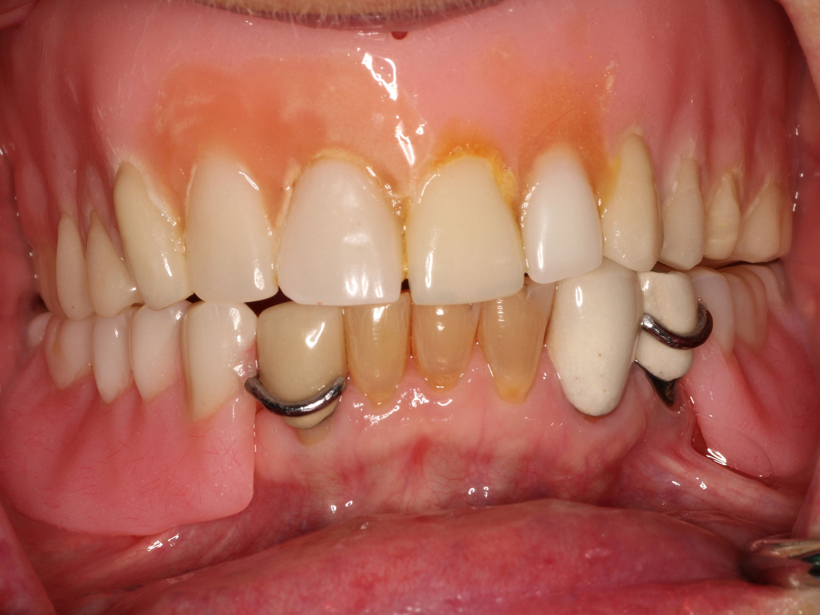3-1-before-upper-denture-lower-partial