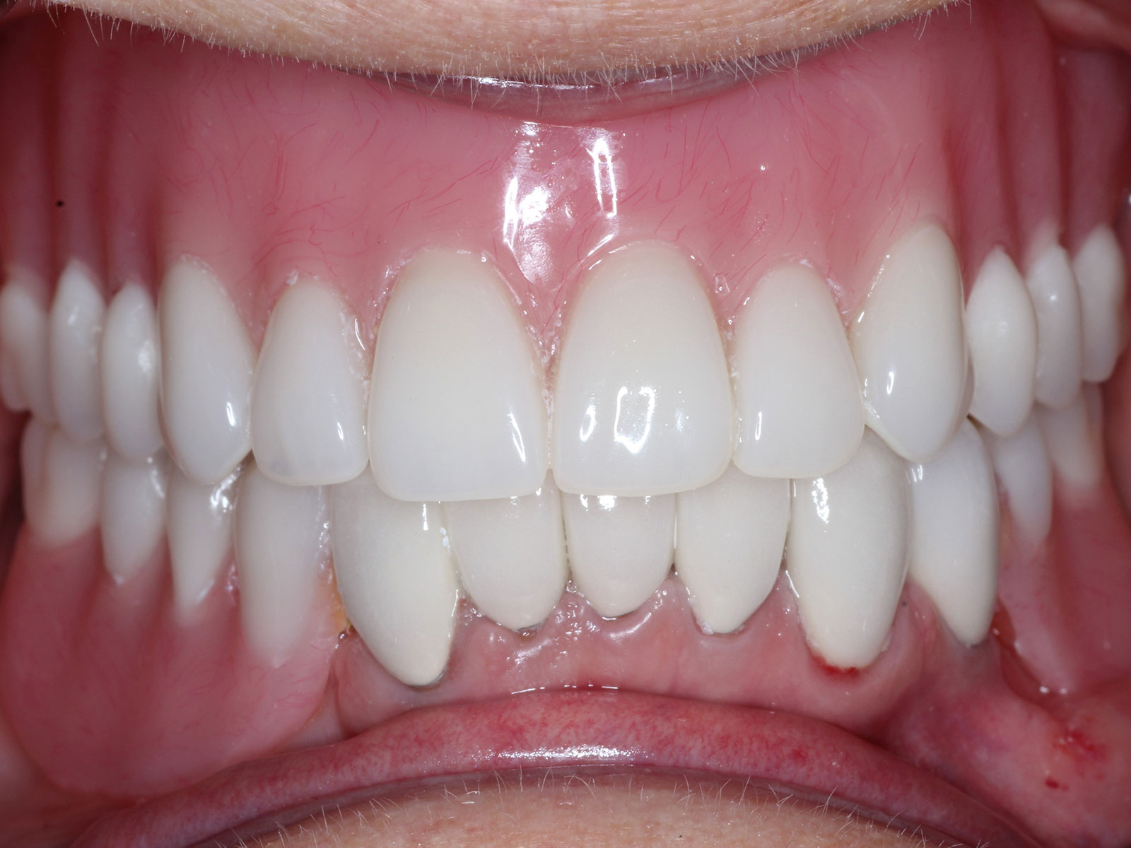 3-2-after-upper-denture-lower-partial