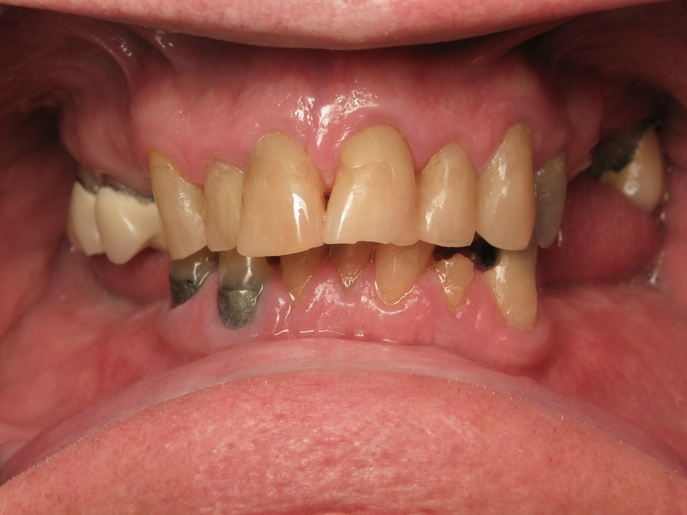5-1-before-full-arch-upper-ceramic-crowns-lower-hybrid