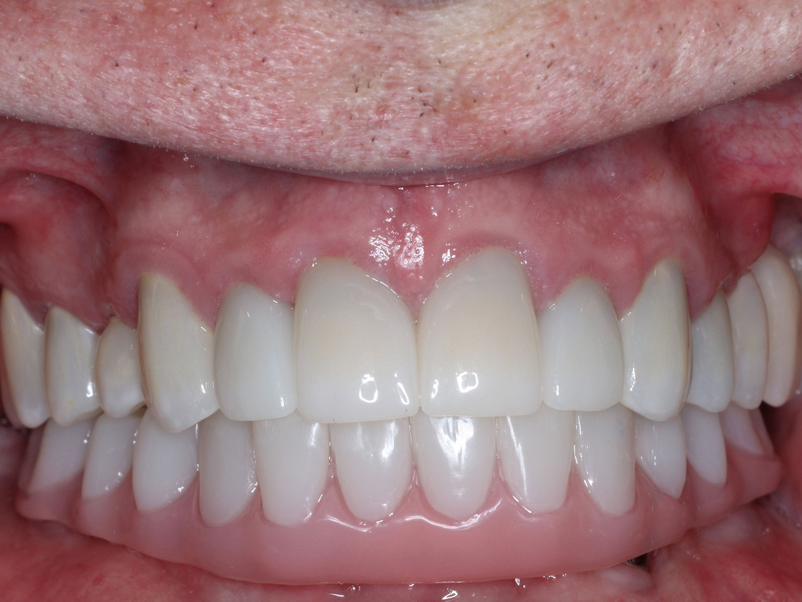 5-2-after-full-arch-upper-ceramic-crowns-lower-hybrid