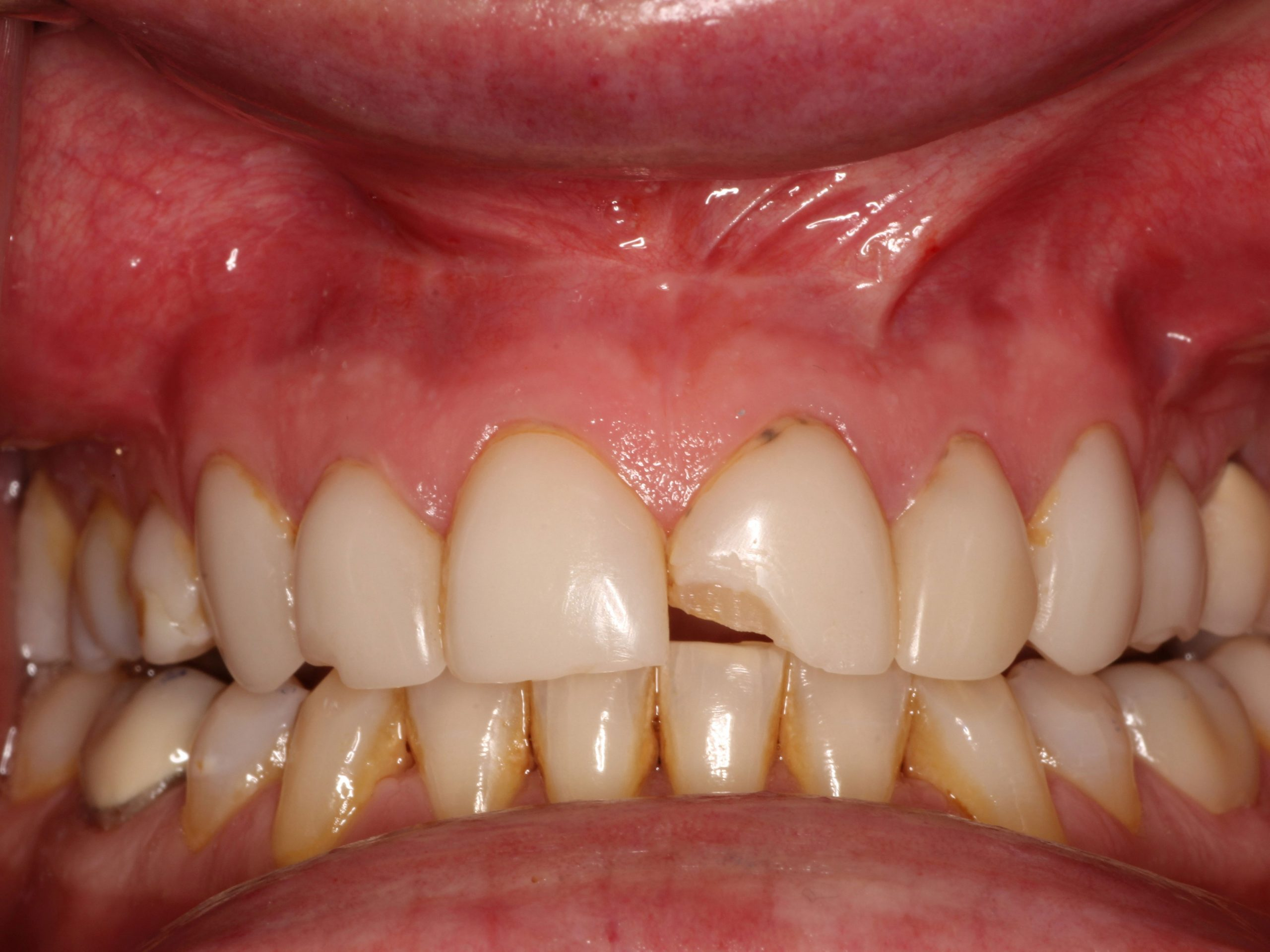 cosmetic-smile-makeover-with-ceramic-crowns-1-before