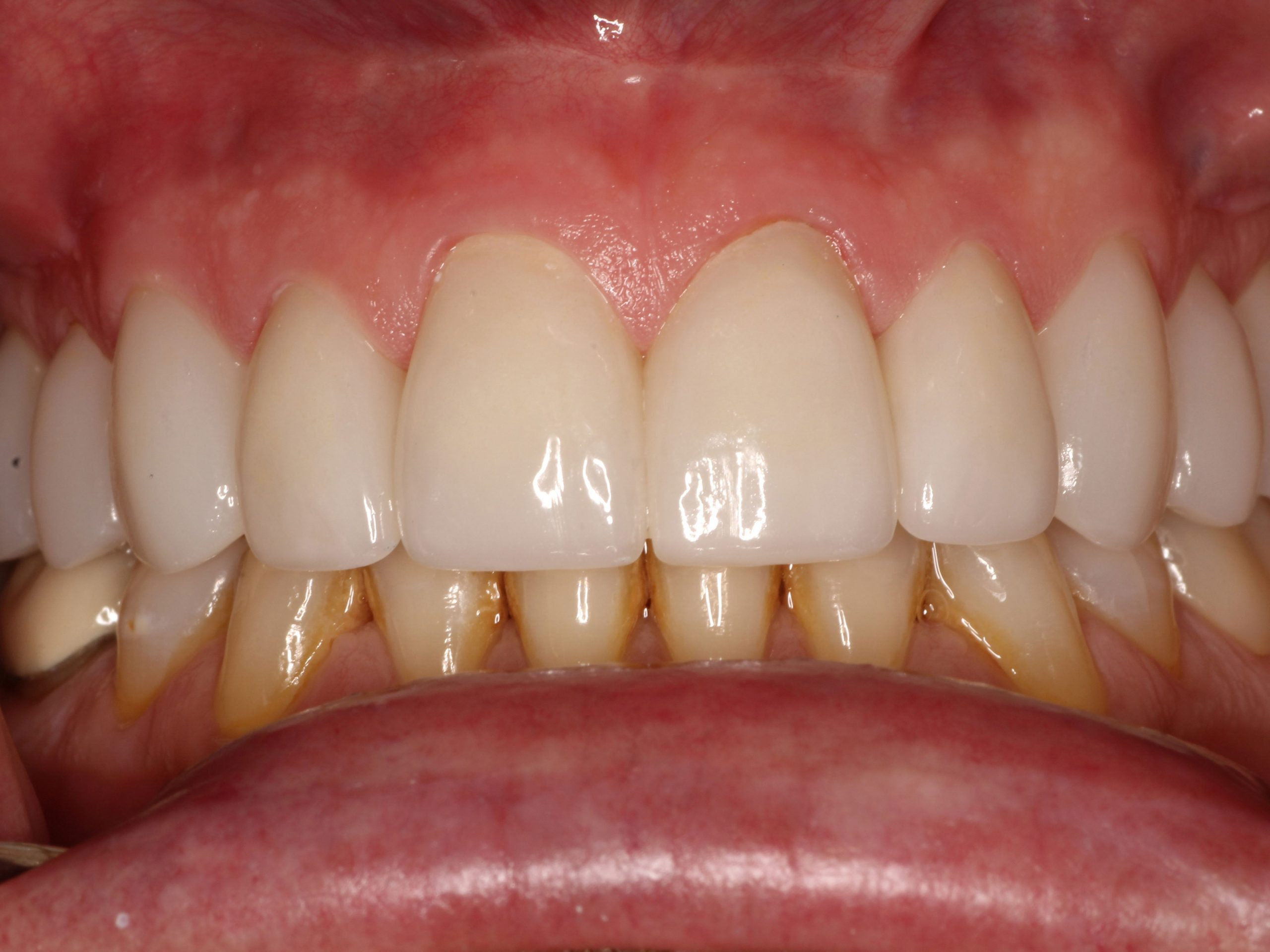 cosmetic-smile-makeover-with-ceramic-crowns-after