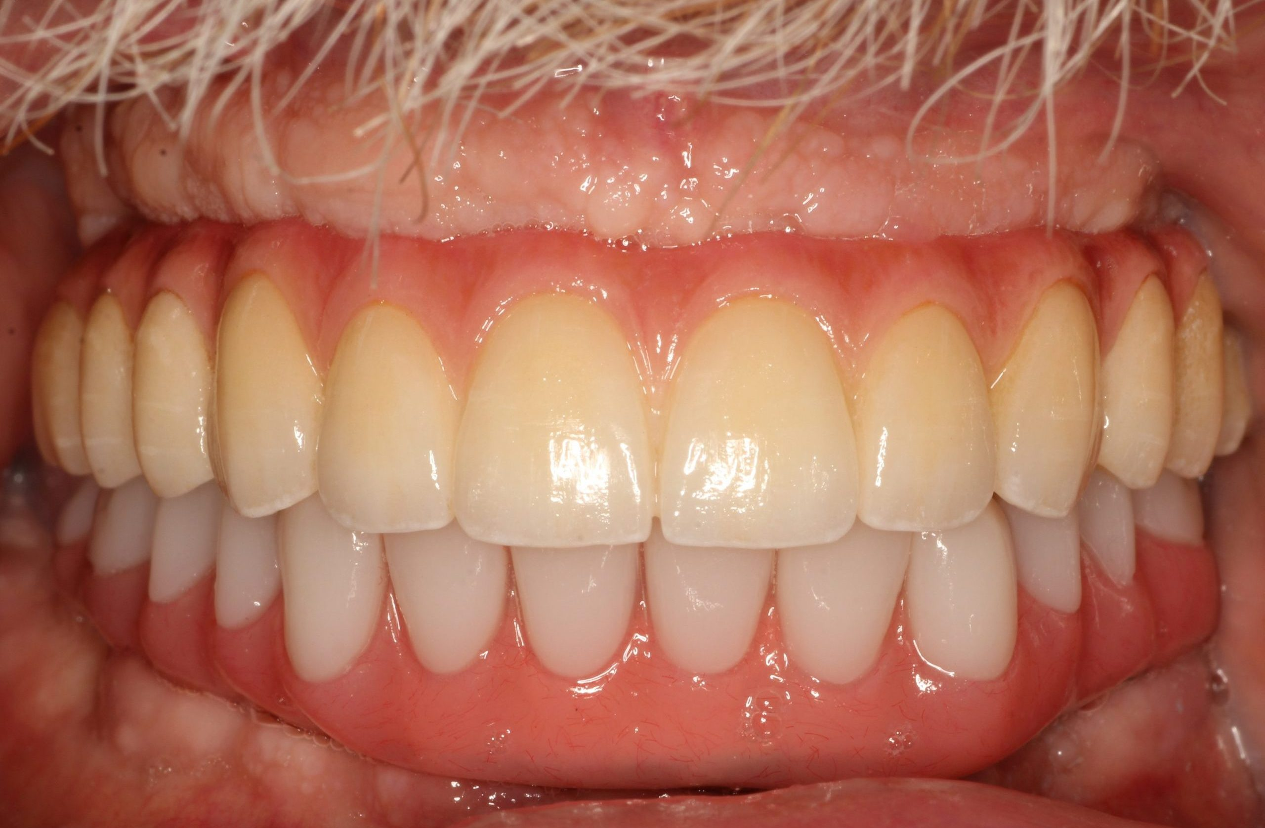 full-implant-tooth-replacement-before